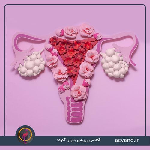 سندرم تخمدان پلی کیستیک (PCOS)
