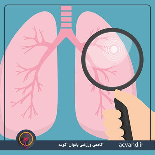نشانه های سرطان ریه