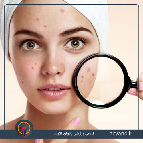 چه زمانی به متخصص پوست نیاز داریم؟
