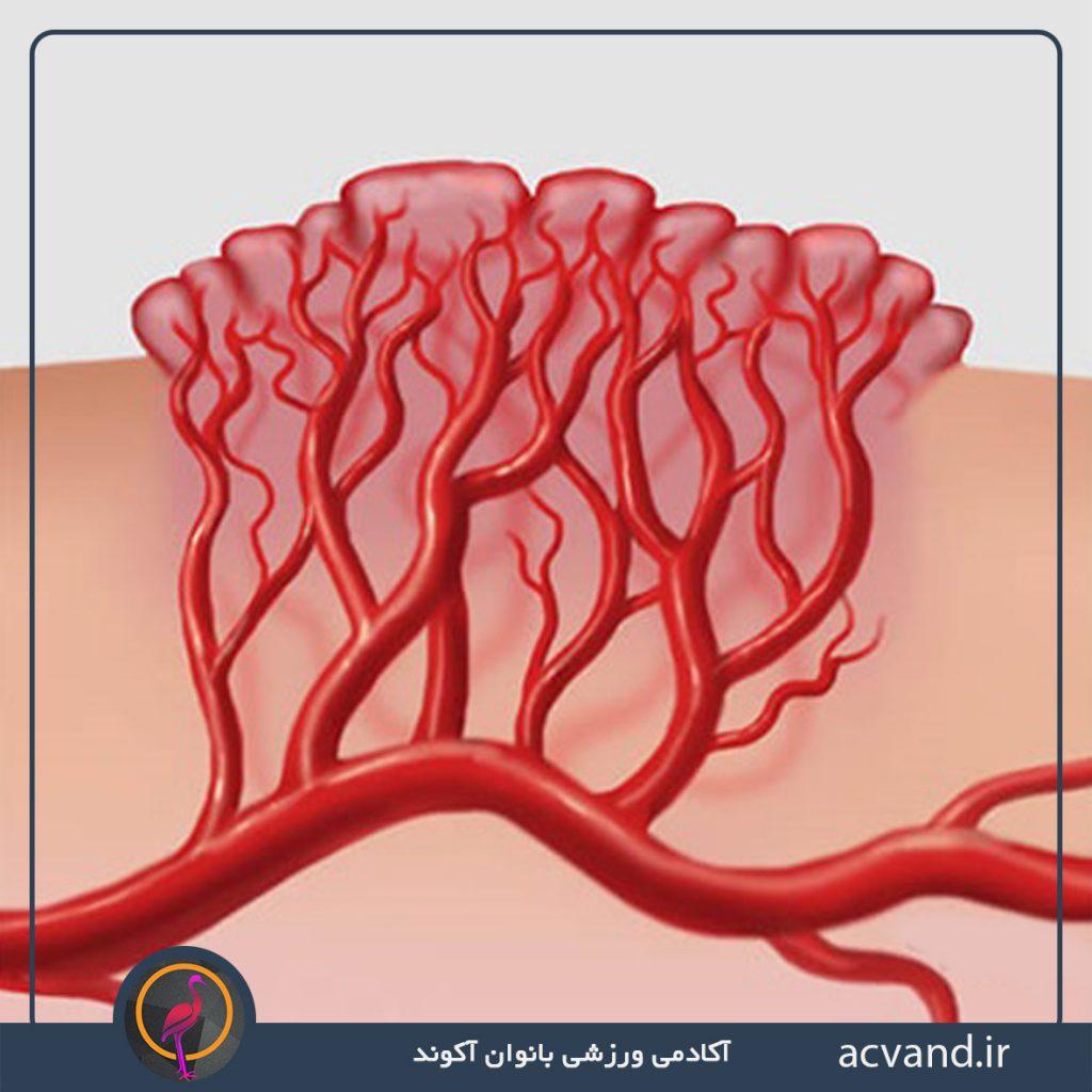 عوامل خون دماغ