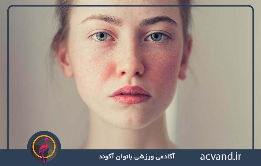 آلرژی آرایشی
