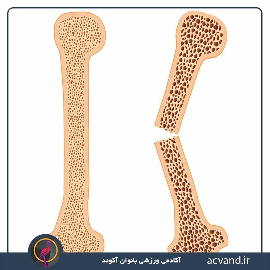 تاثیرات بدنسازی بر پوکی استخوان
