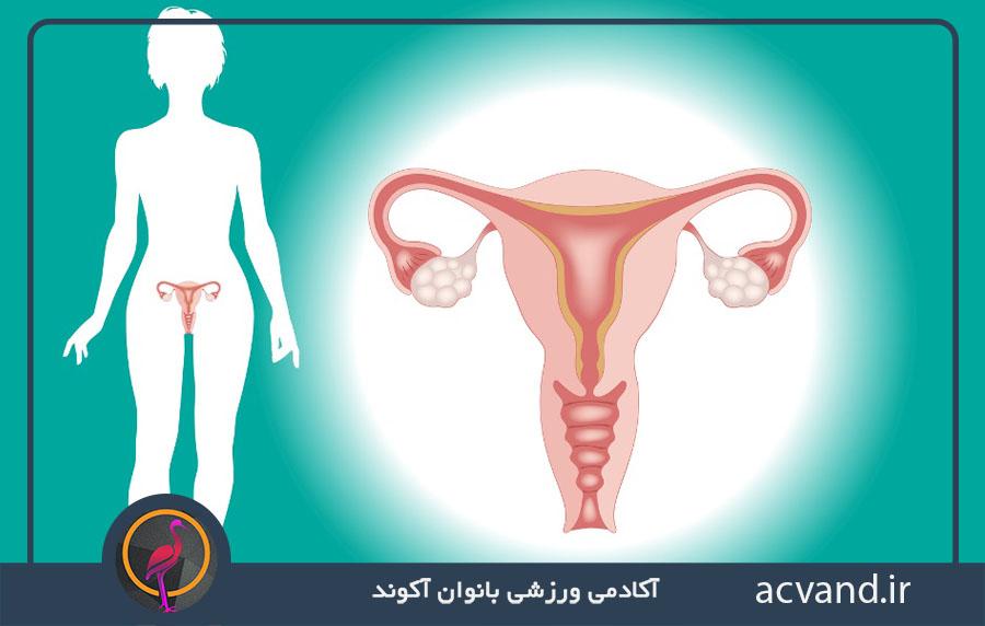درمان بیماری سندروم تخمدان پلی کیستیک