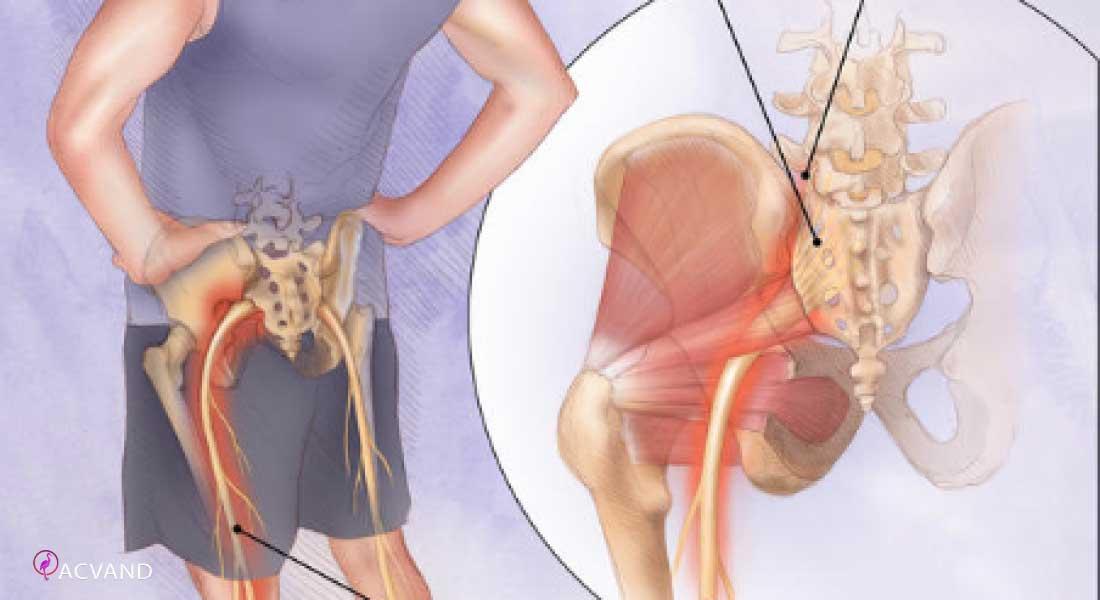 تمرینات ورزشی برای کاهش درد سیاتیک